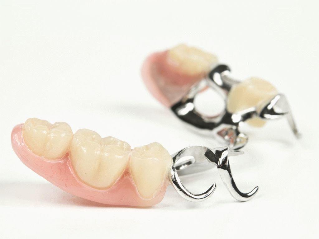 Стоматологические услуги: Протез бюгельный в Ридент, стоматология, ООО Частная стоматологическая практика плюс