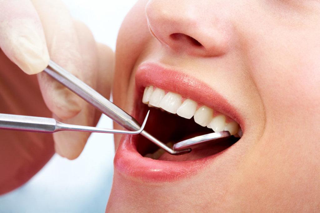 Стоматологические услуги: Лечение кариеса в Жемчужина, сеть стоматологических центров, Альфа, ООО