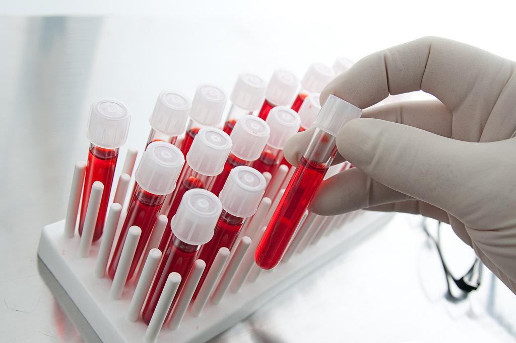 Услуги медицинских лабораторий: Кровь на сахар в Центр лабораторной диагностики Целди, ООО