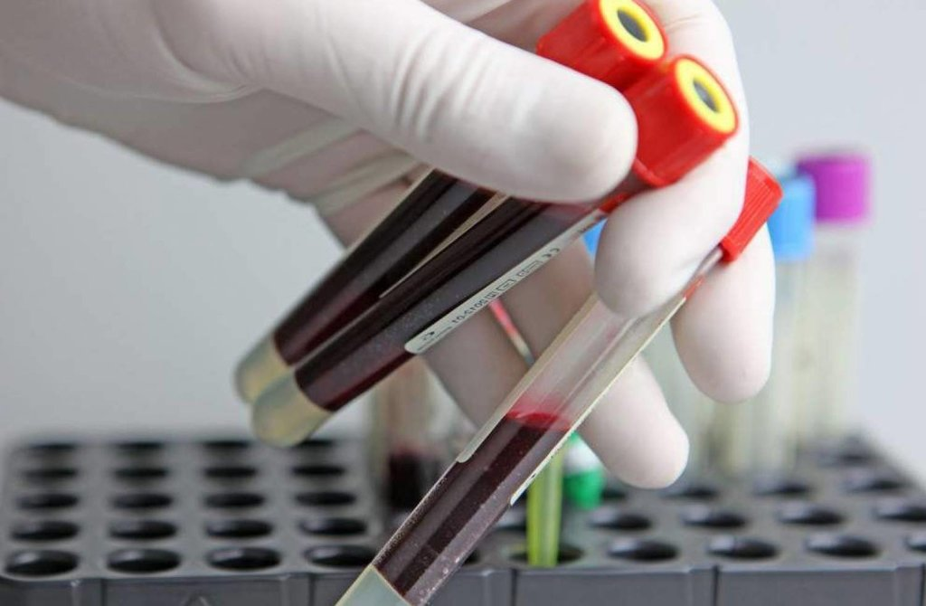 Услуги медицинских лабораторий: Биохимический анализ крови в Центр лабораторной диагностики Целди, ООО