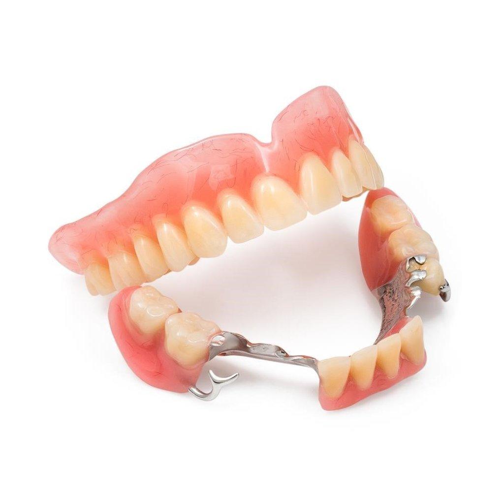 Стоматологические услуги: Протез бюгельный в Жемчужина, сеть стоматологических центров, Альфа, ООО