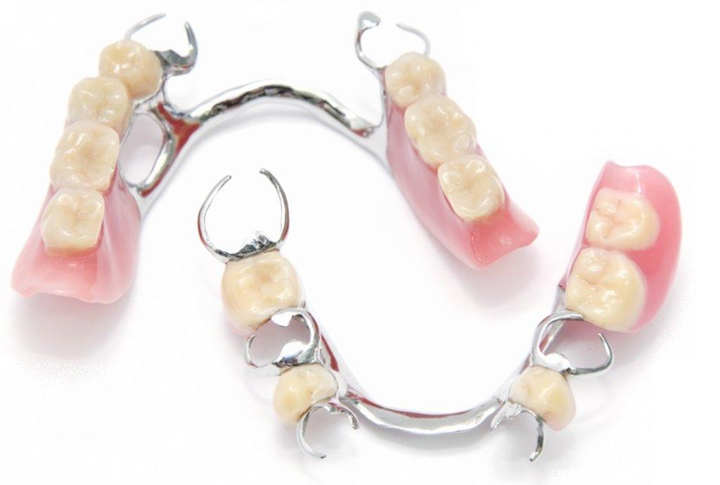 Стоматологические услуги: Протез бюгельный в ДанСи, стоматология, ООО