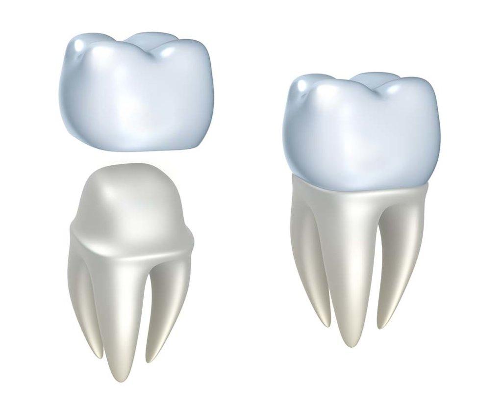 Стоматологические услуги: Коронка временная в Жемчужина, сеть стоматологических центров, Альфа, ООО