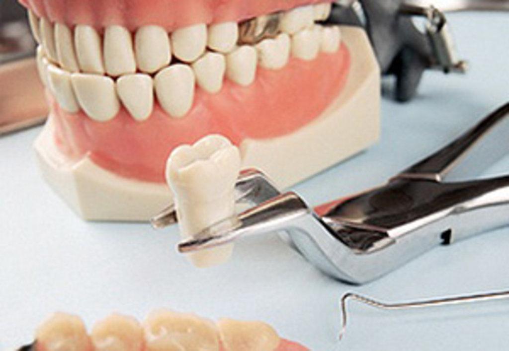 Прочие работы: Препаровка зуба в Евро-Дент