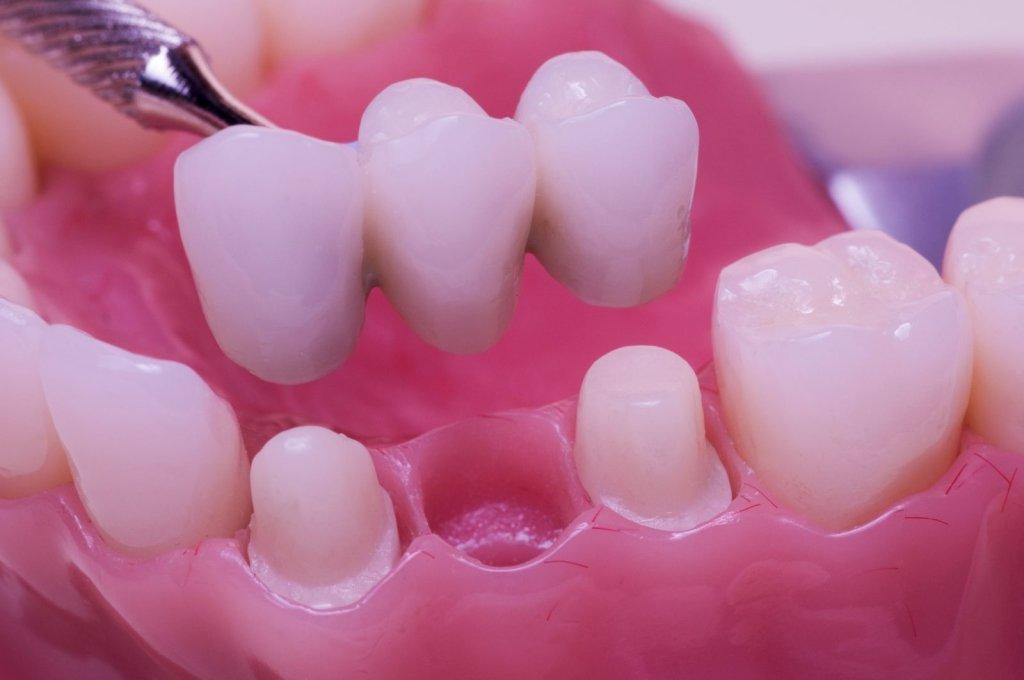 Стоматологические услуги: Коронка временная в Ридент, стоматология, ООО Частная стоматологическая практика плюс