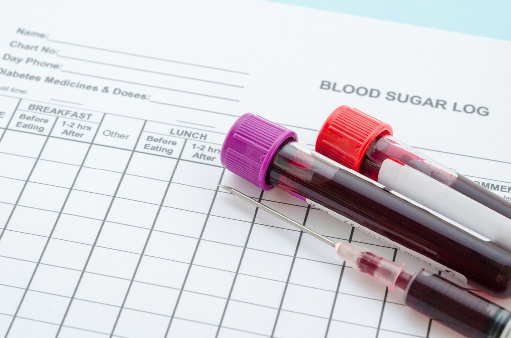 Услуги медицинских лабораторий: Анализ крови на сахар в Центр лабораторной диагностики Целди, ООО