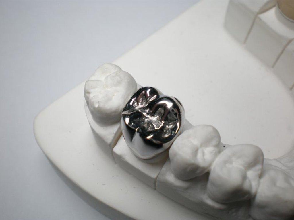 Стоматологические услуги: Коронка цельнолитая в Жемчужина, сеть стоматологических центров, Альфа, ООО