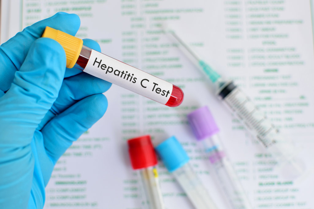 Услуги медицинских лабораторий: Анализ на гепатит в Центр лабораторной диагностики Целди, ООО