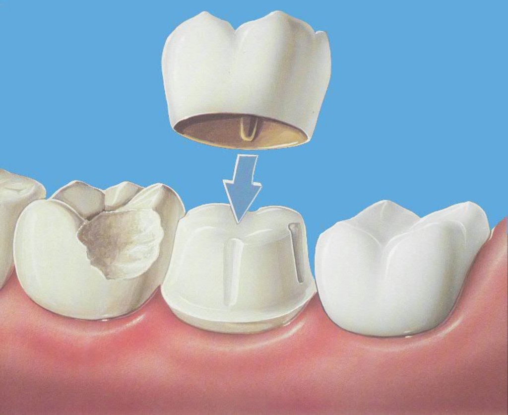 Стоматологические услуги: Восстановление коронок в Жемчужина, сеть стоматологических центров, Альфа, ООО