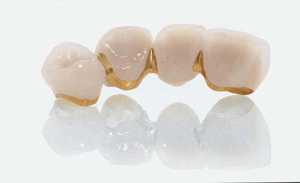 Стоматологические услуги: Коронка металлокерамическая в Ридент, стоматология, ООО Частная стоматологическая практика плюс