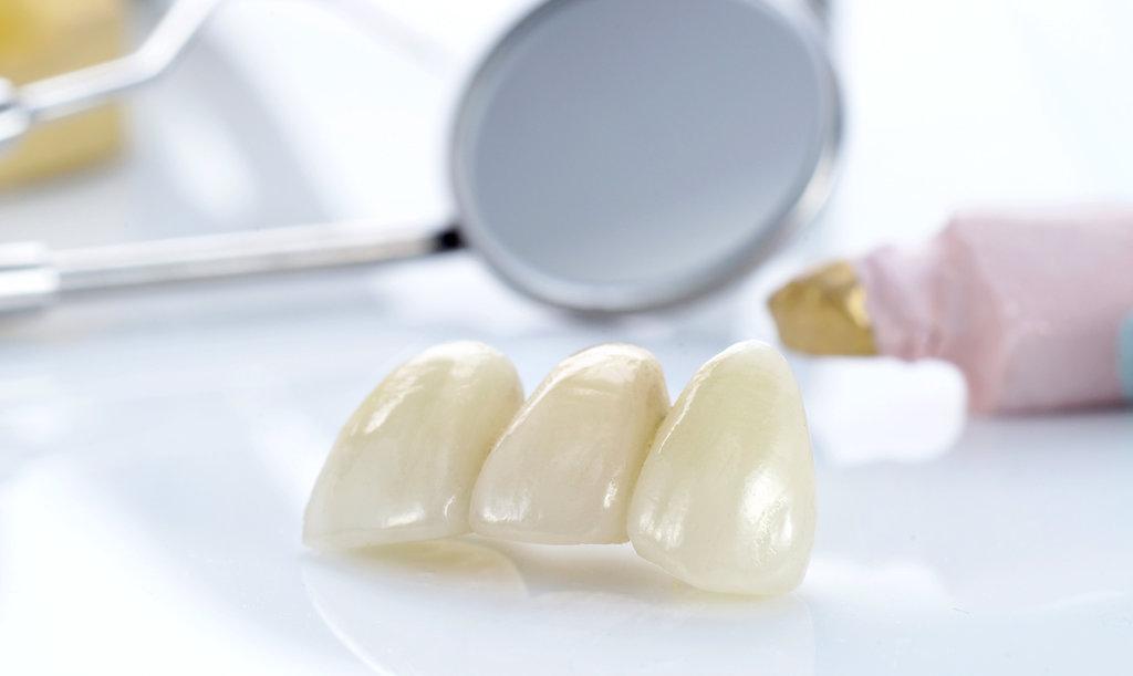 Стоматологические услуги: Коронка металлокерамическая в Dental Design (Дентал Дизайн), стоматологическая клиника