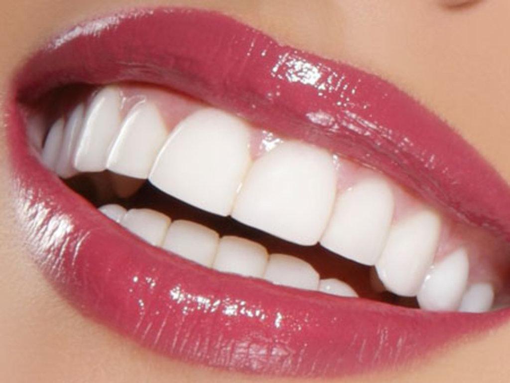 Стоматологические услуги: Винирование зубов в ДанСи, стоматология, ООО