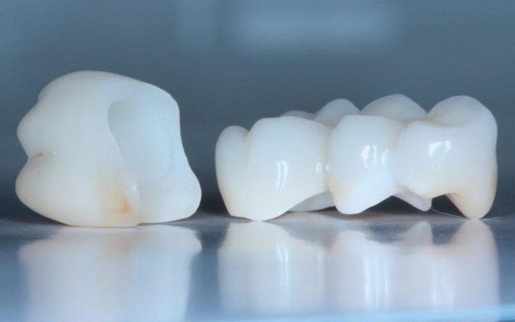 Стоматологические услуги: Коронка временная в Dental Design (Дентал Дизайн), стоматологическая клиника
