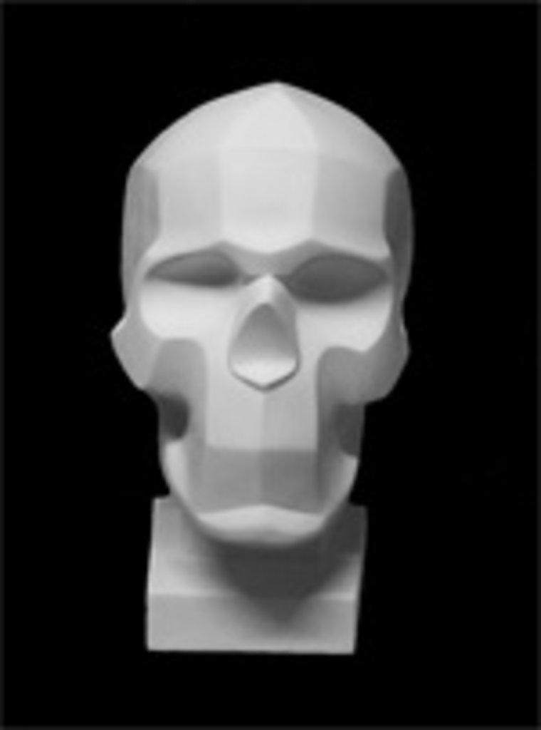 Гипсы: Обрубовка черепа по Баммесу в Шедевр, художественный салон