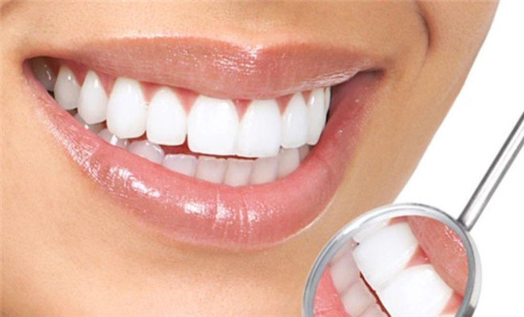 Стоматологические услуги: Виниры на зубы в Эстетика, центр стоматологии, ООО