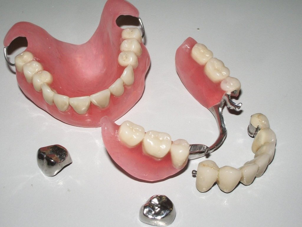 Стоматологические услуги: Протезирование зубов в Ридент, стоматология, ООО Частная стоматологическая практика плюс