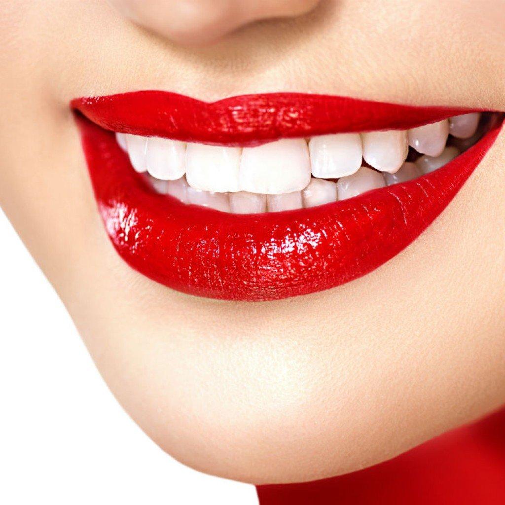 Стоматологические услуги: Отбеливание зубов в Dental Design (Дентал Дизайн), стоматологическая клиника
