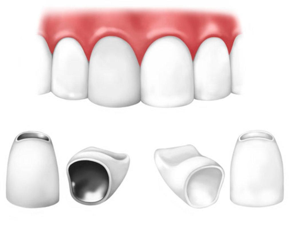 Стоматологические услуги: Коронка металлокерамическая в ДанСи, стоматология, ООО