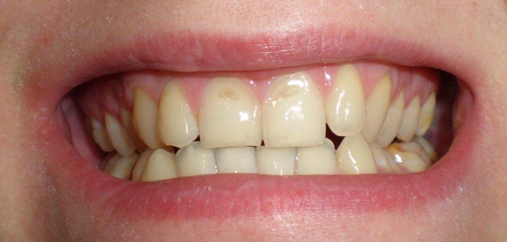 Эрозия эмали зубов в Эстетика, центр стоматологии, ООО