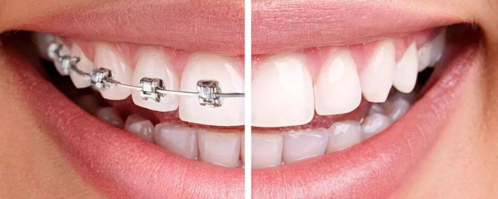 Снятие брекетов в Эстетика, центр стоматологии, ООО