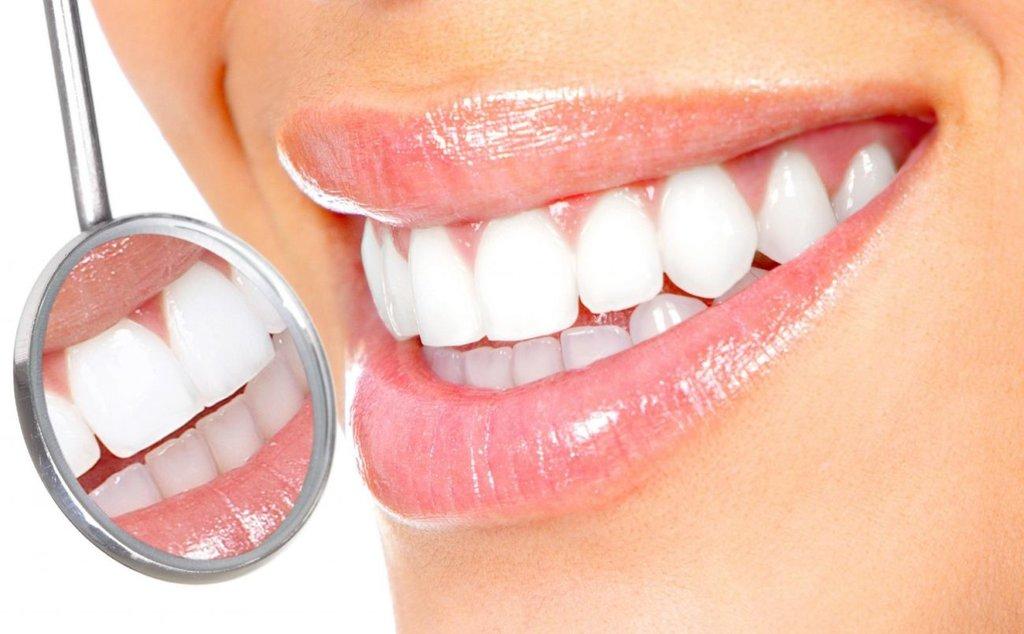 Стоматологические услуги: Отбеливание зубов в Ридент, стоматология, ООО Частная стоматологическая практика плюс