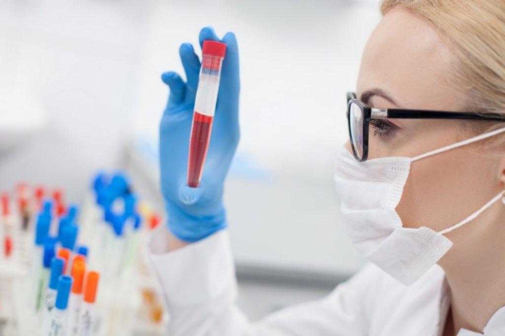 Услуги медицинских лабораторий: Исследование крови в Центр лабораторной диагностики Целди, ООО