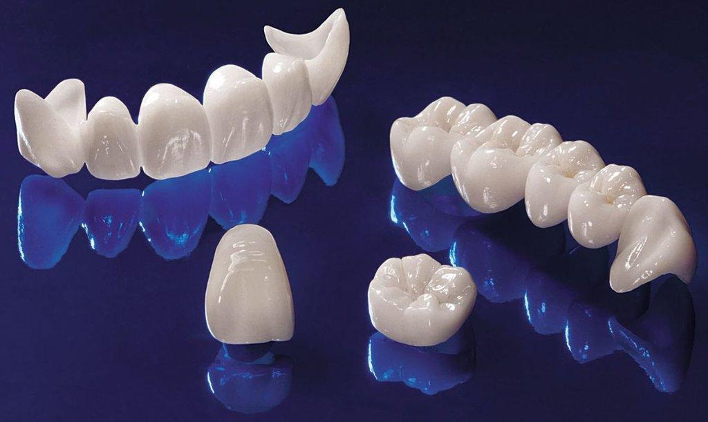Безметалловая керамика в Эстетика, центр стоматологии, ООО