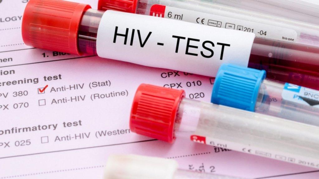 Услуги медицинских лабораторий: Анализ на ВИЧ в Центр лабораторной диагностики Целди, ООО