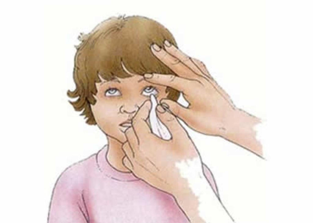 Медицинские услуги: Удаление инородного тела в Вологодский центр лазерной коррекции зрения, ООО