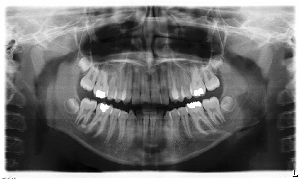 Ортопантомография в Эстетика, центр стоматологии, ООО