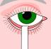 Коррекция зрения: Проба Ширмера в Вологодский центр лазерной коррекции зрения, ООО